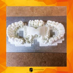 Denti 1